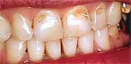 Эрозия зубной эмали