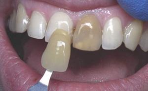 Внутреннее отбеливание депульпированного зуба
